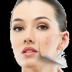 Мазна кожа козметика (73)