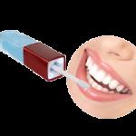 Избелване на зъби (12)